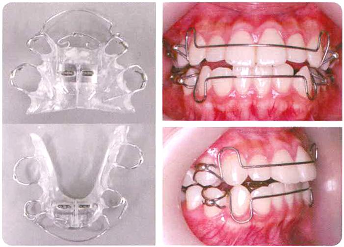 取り外し式の歯列矯正装置