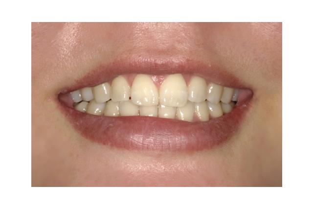 きれいな歯並び
