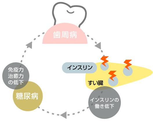 歯周病悪化イラスト